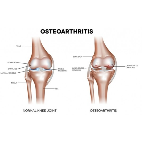 Arthritis/Osteoarthritis