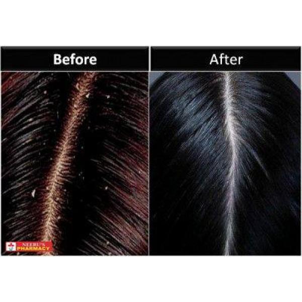 Selsun Gold Anti Dandruff Treatment Shampoo 200ml